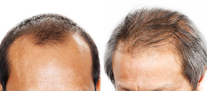 saç ekimi ankara